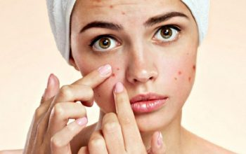How To Take Care Of Acne-Prone Skin