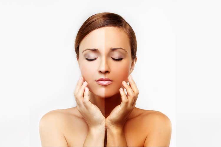 Looking For Safe Skin Whitening Ways