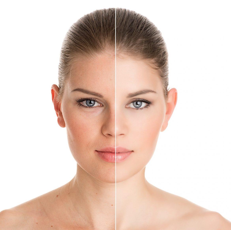 Safe Ways To Brighten Your Skin Tone