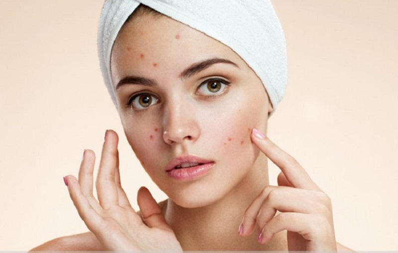 The Relation Between Oily Skin And Pimples