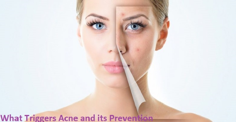 what causes acne on cheeks, acne treatments, causes of pimples on face in adults, how to prevent pimples on face forever, how to prevent pimples for oily skin, how to clear acne, types of acne, foods that cause acne