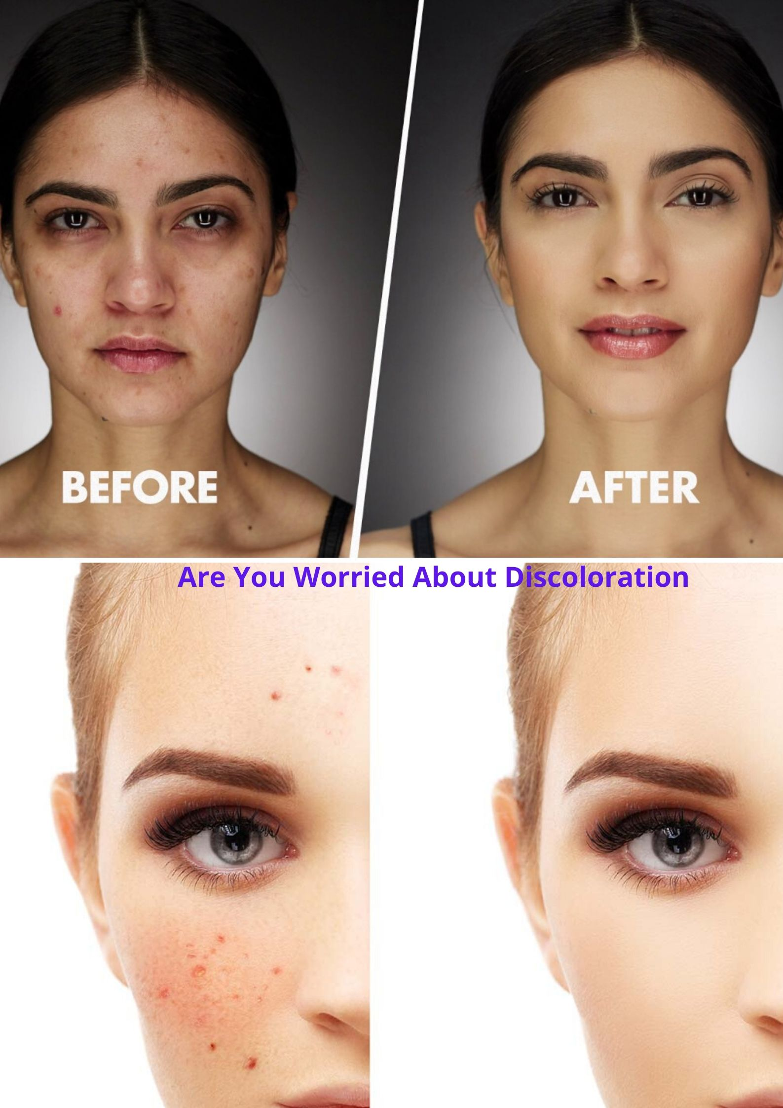 Are You Worried About skin Discoloration? Solution!