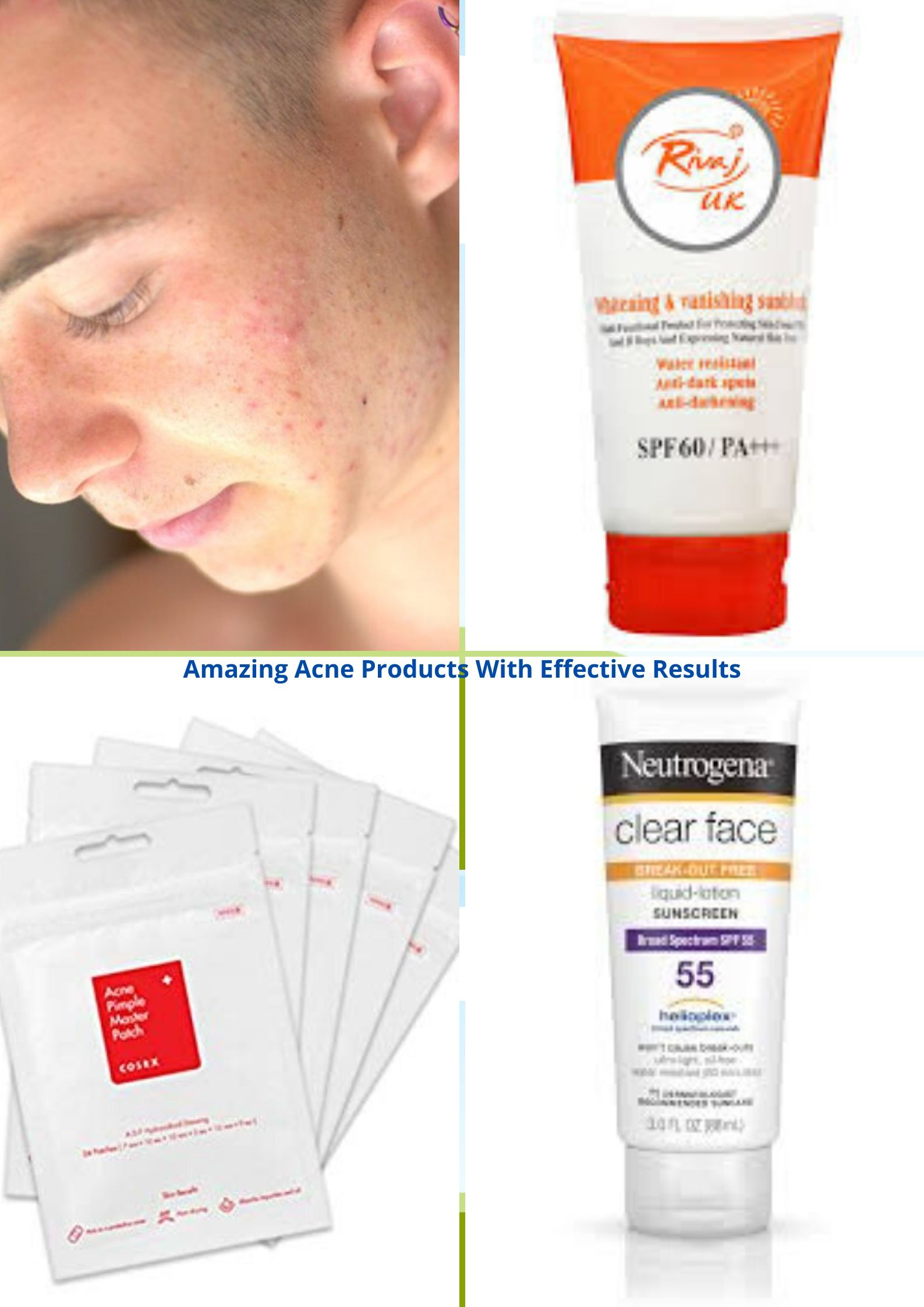 Amazing Acne Products With Effective Results