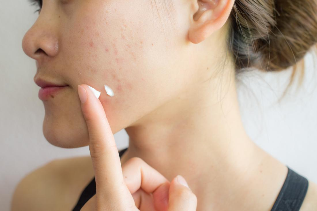 Effective Ways Of Preventing Acne