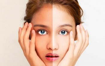 Look Inside The World Of Skin whitening
