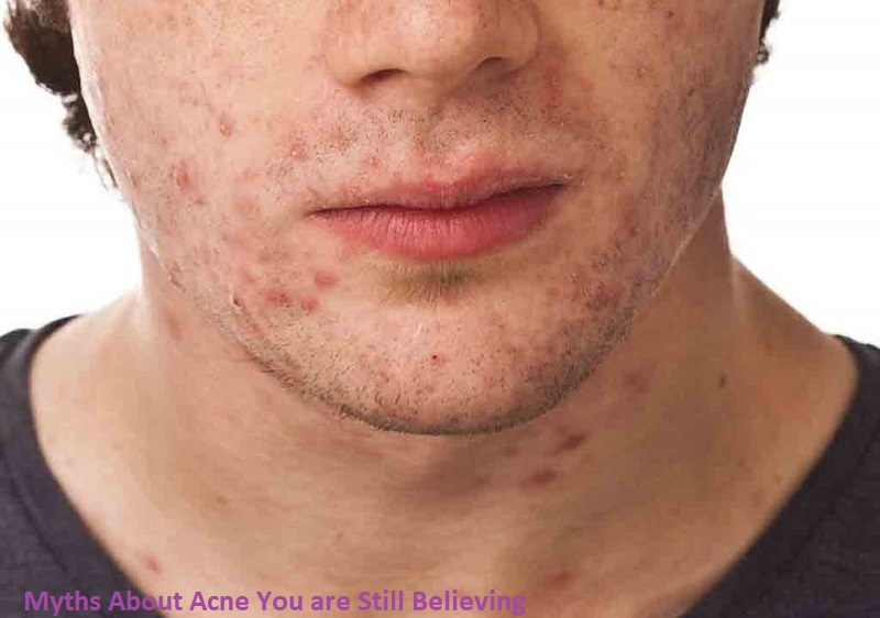 Myths about acne you are still believing