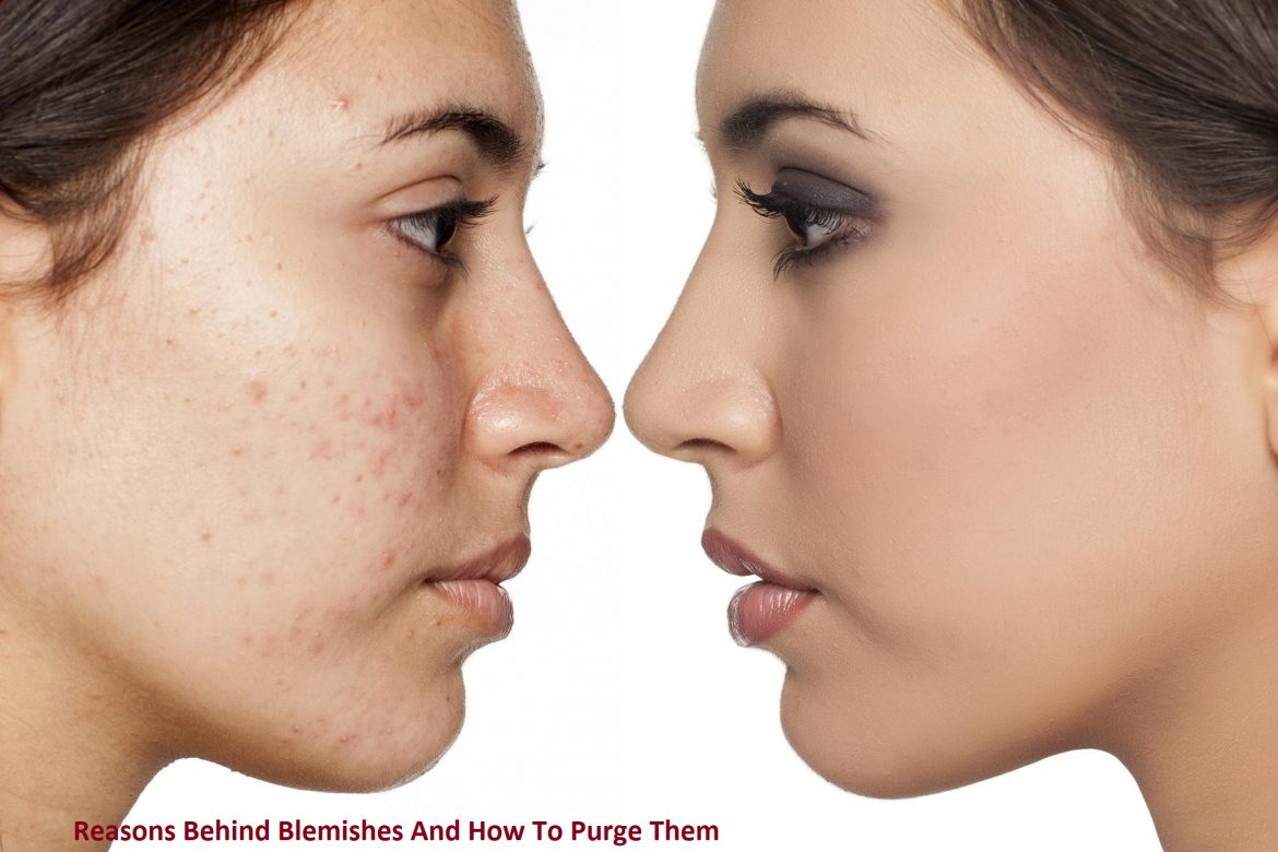 Reasons Behind Blemishes And How To Purge Them