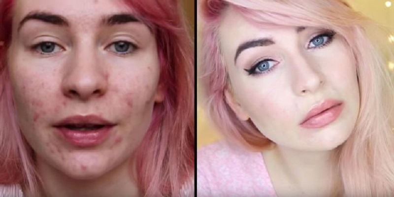 Say Goodbye To Breakouts