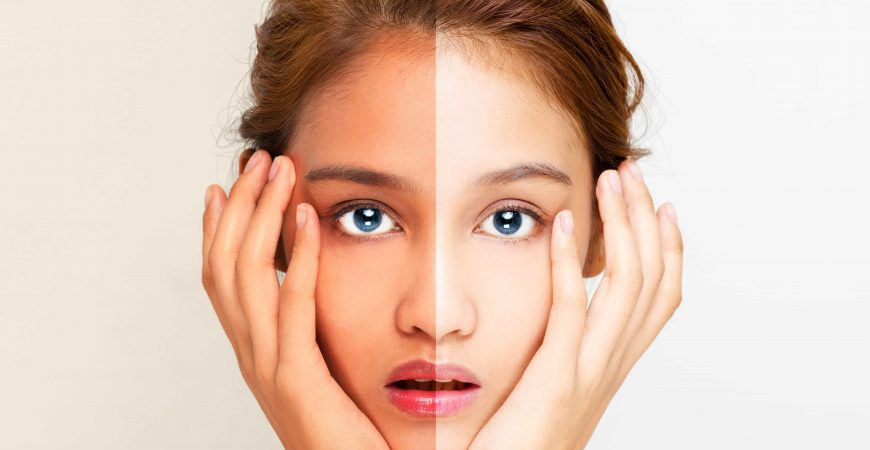 Look Inside The World Of Skin whitening